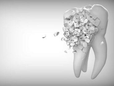 hvad koster en tandblegning og hvorfor