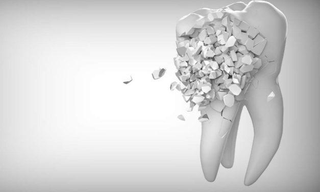 Tandblegning guide; Hvordan, hvad er (og koster) blegning af tænder